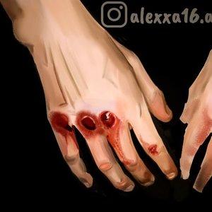 Estudio mano sangrante